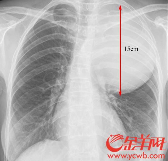 险!女子胸腔内长巨瘤,直径长达15公分1001.jpg
