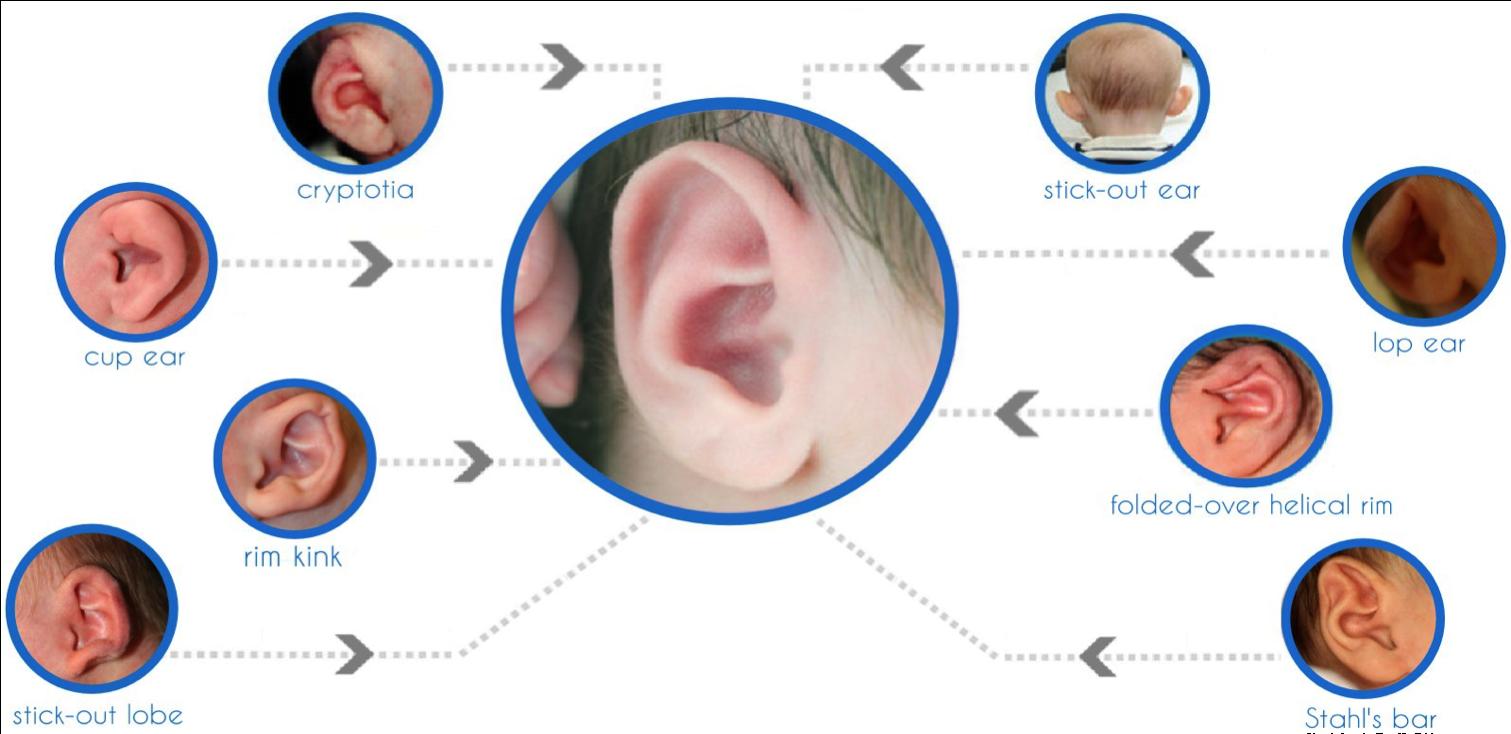 新科技,耳廓畸形戴上這個,完美!803.png